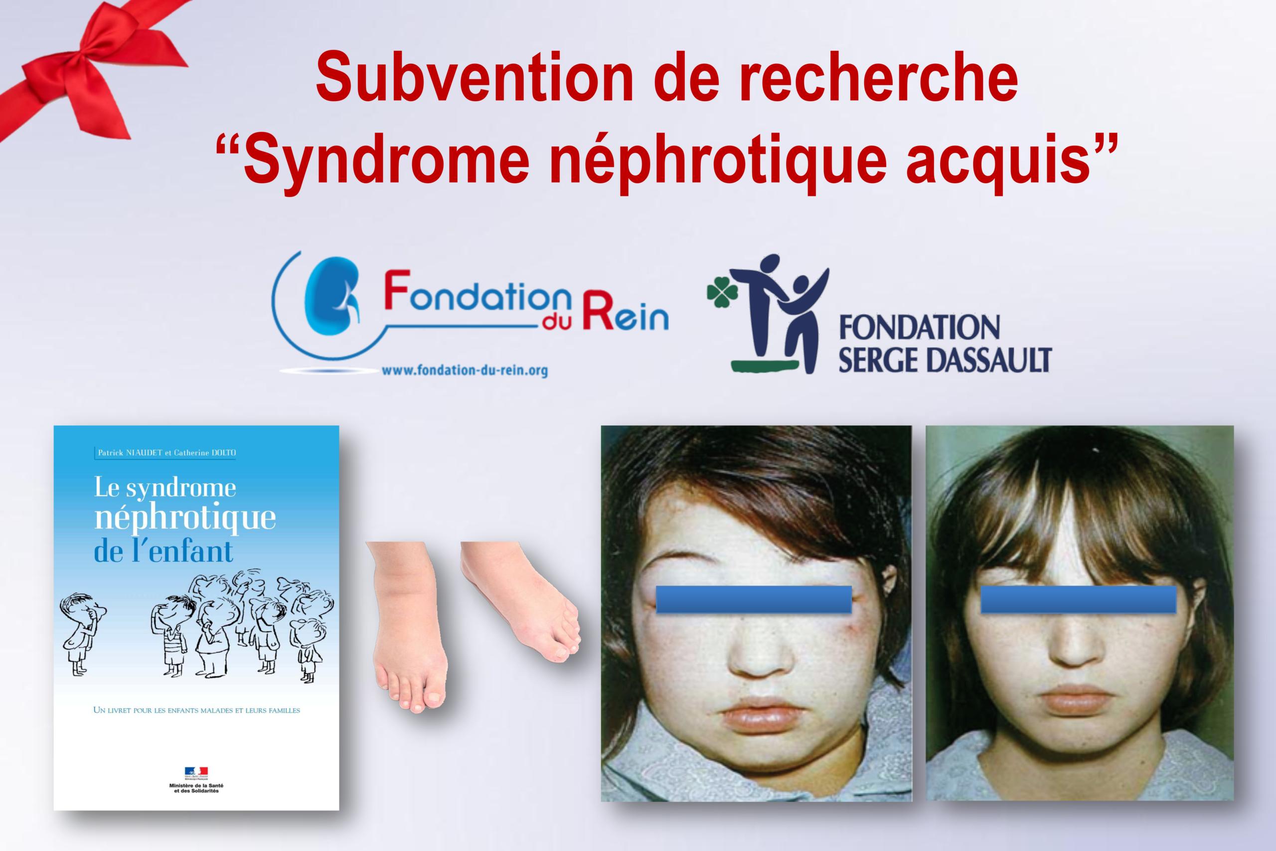 """Subvention de Recherche """"Syndrome néphrotique acquis"""""""